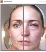 Billeder: Annettes ansigt allergiramt! Annette Hecik, Allergi, ansigt, billede, Instagram