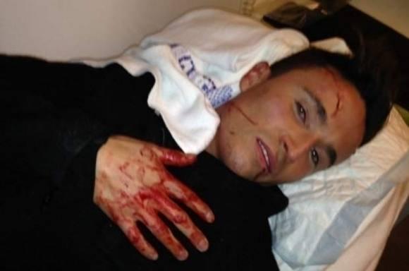 Gustav overfaldet af rocker-lærling! Gustav, overfald, single, bøsse, homo, Salinas